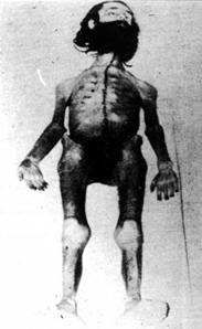 Cadavre de Holger Meins
