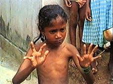 Enfant victime de malformation
