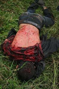 Victime de la répression au Honduras