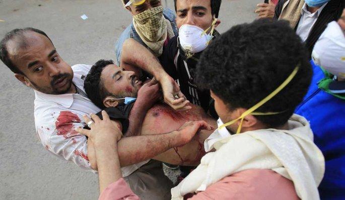 Répression et blessés à Sanaa