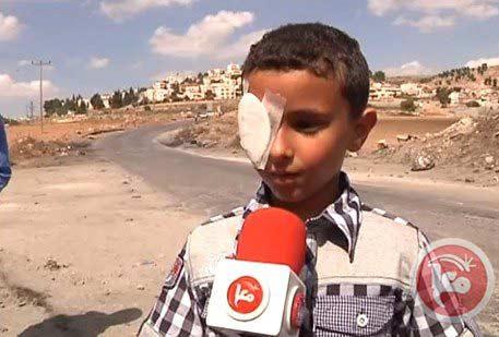 enfant palestinien éborgné