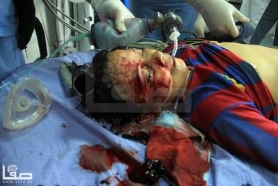 enfant blessé à Gaza le 21/2/2014