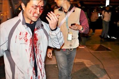 Lin Ming-hui, fraichement matraqué lors de l'occupation du parlement taïwanais.