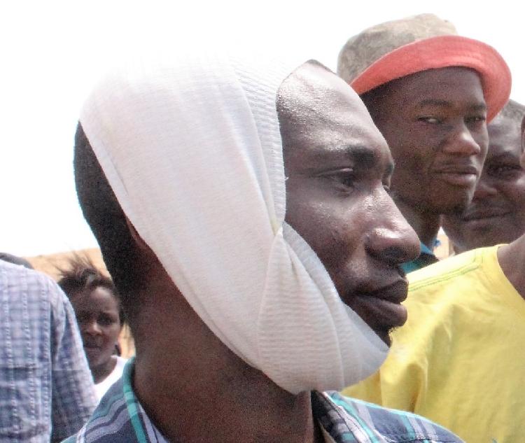 Un des manifestants touché par une balle de caoutchouc