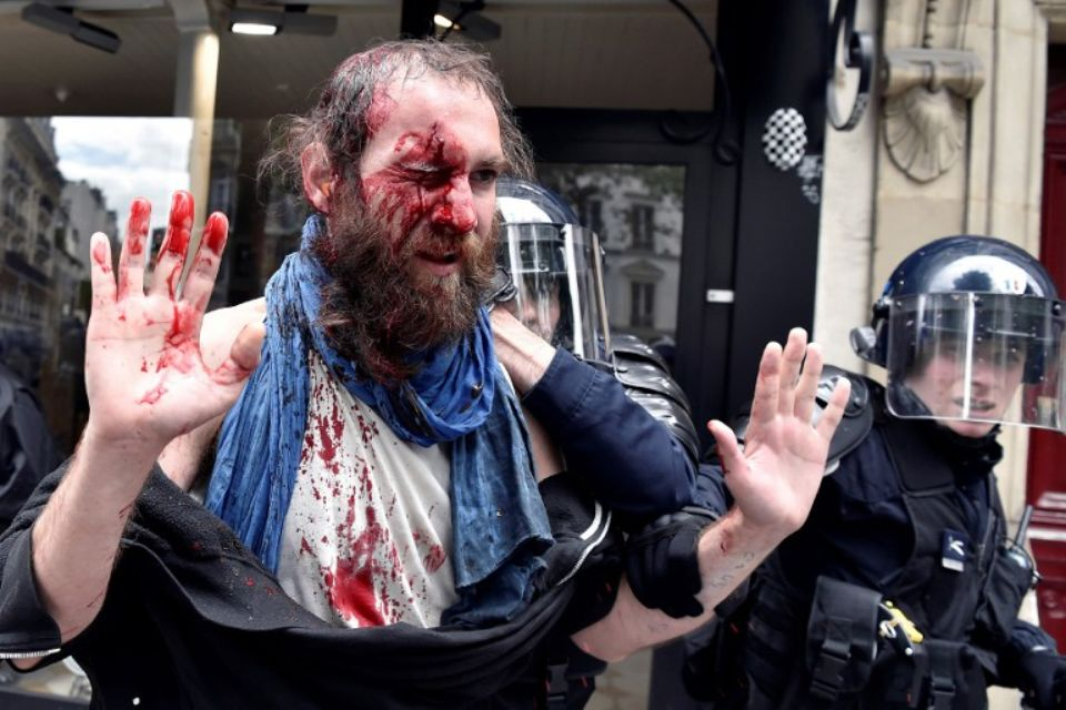 Manifestant blessé cet après-midi à Paris