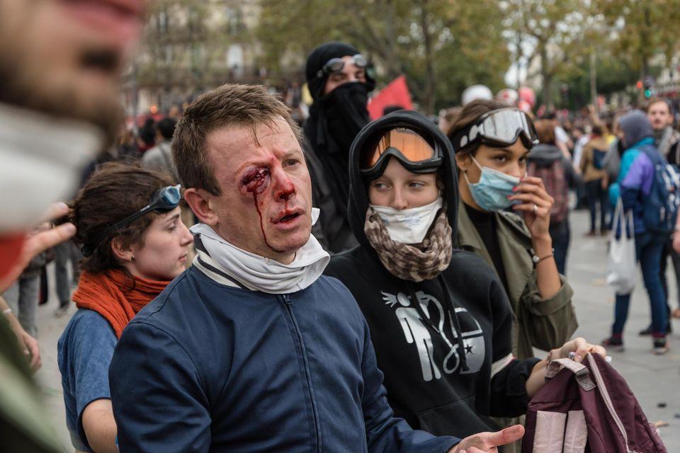 Le syndicaliste éborgné par la police