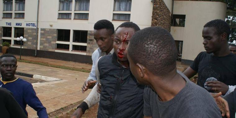 Un étudiant blessé à Nairobi