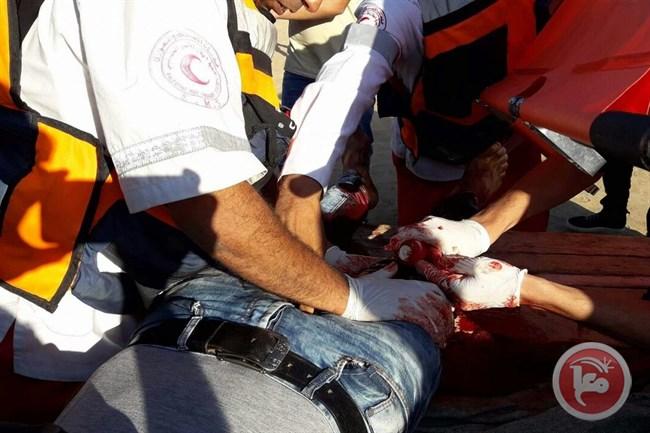 Un des trois manifestants blessés par balle vendredi