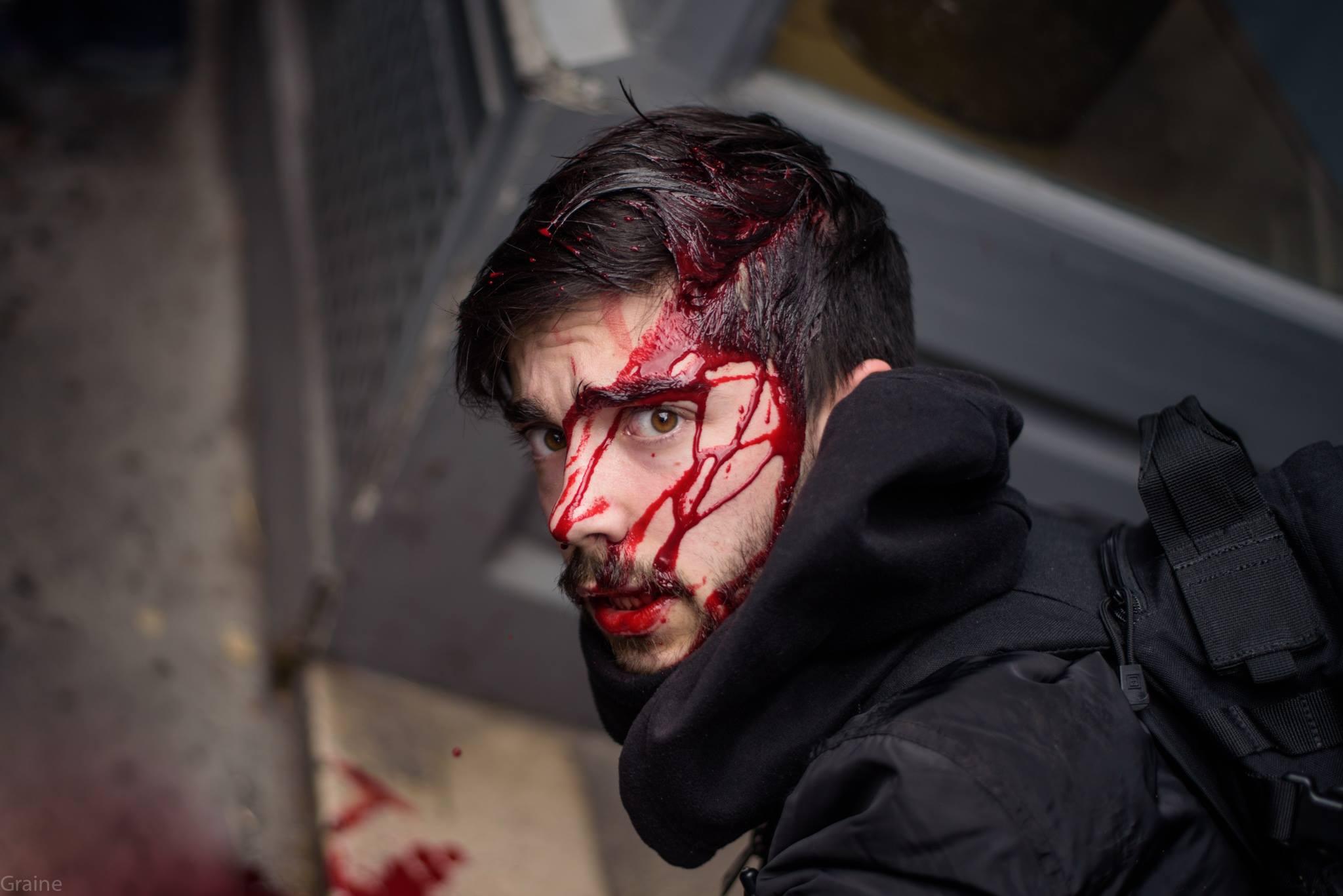 Photographe blessé par la police.