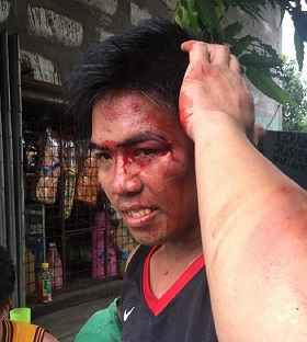 Gréviste de NutriAsia blessé par la police