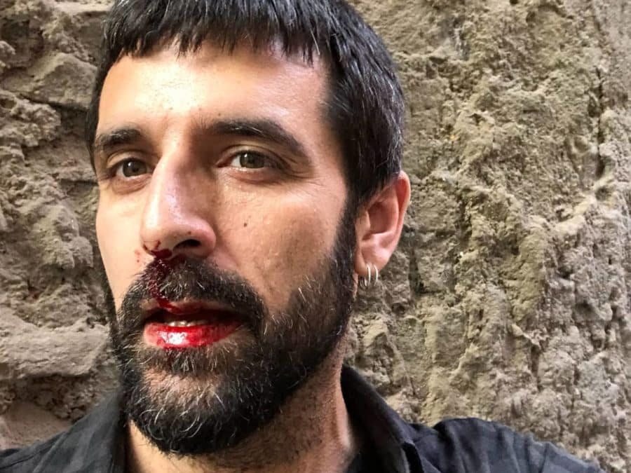 Le journaliste Jordi Borràs après avoir été agressé