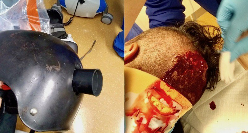 L'antifa blessé à Portland et son casque perforé par la grenade