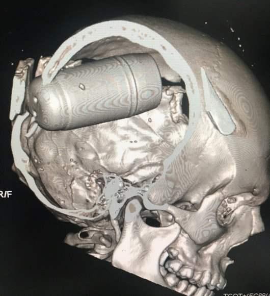 Imagerie médicale d'un patient décédé suite à l'utilisation d'une grenade brise crâne