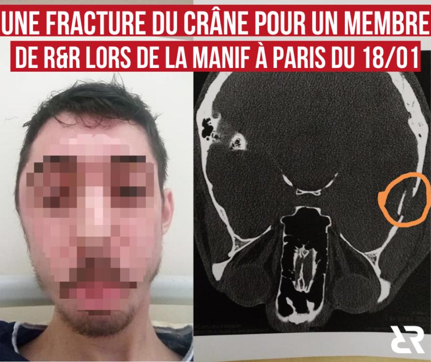 Fracture du crâne pour un militant de R&R lors de l'acte 62 des Gilets Jaunes