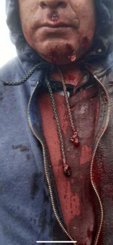 Les forces spéciales des Carabineros ont tiré sur les manifestant·es avec du plombs